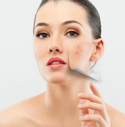 Best care for acne-prone skin by Best Facials Singapore